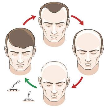 عمليات زراعة الشعر