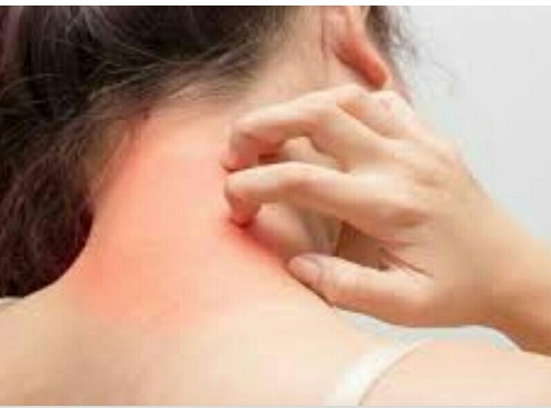 سرطان الجلد :انواعه و أسباب الاصابة به وأفضل الطرق للوقاية منه.